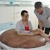 Chinês passa por cirurgia para remover maior tumor do mundo