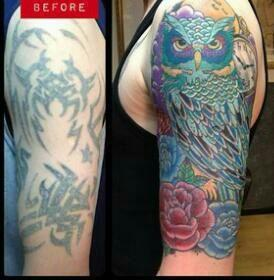 5 ways to remove a tattoo tattoo lawas for Ways to remove tattoos