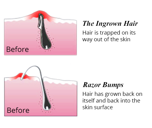 My Body Hair Shaving Experience Tips Product
