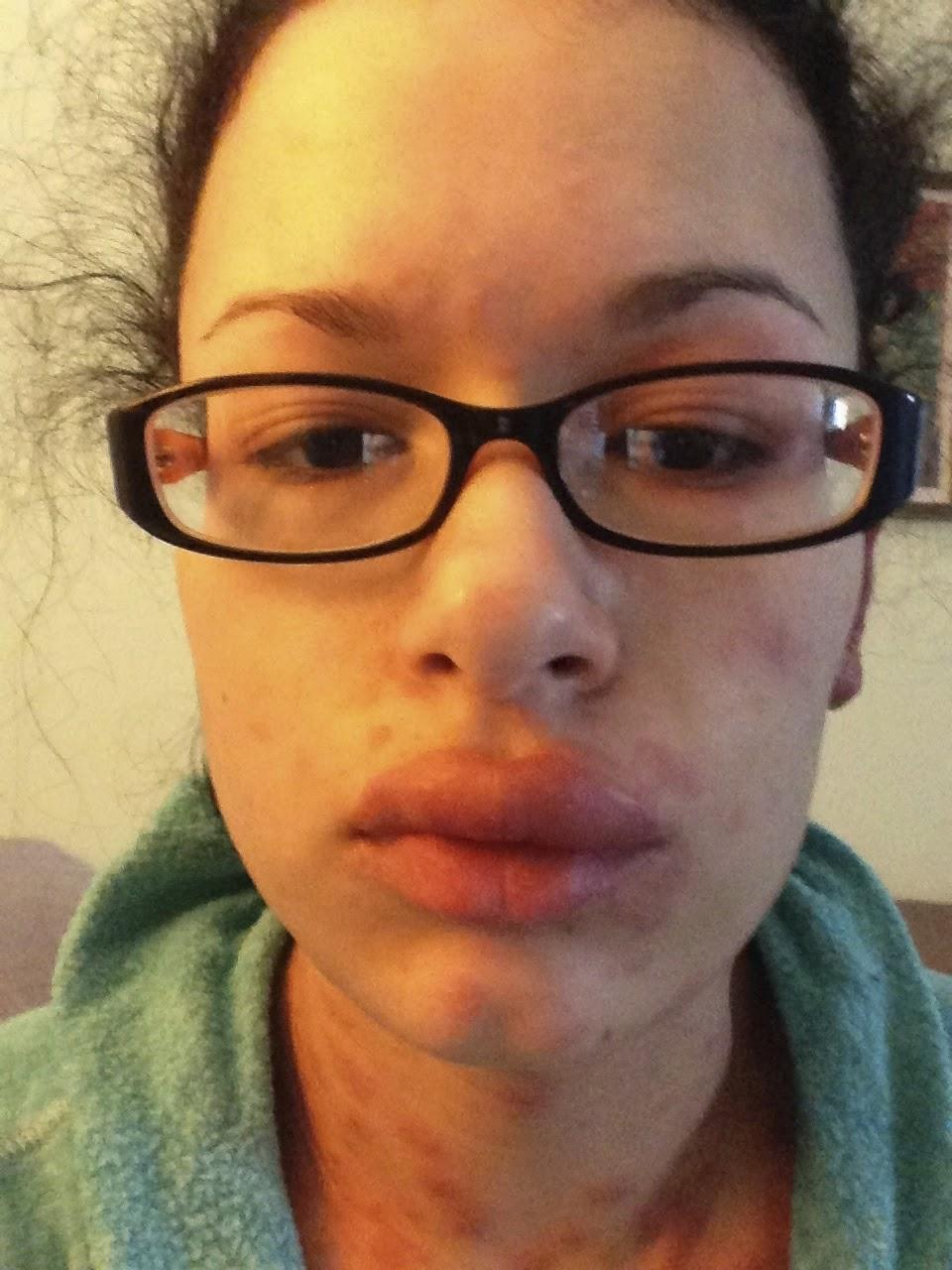 prednisone and lump in throat