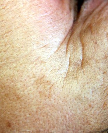 Linumidimento di crema per il viso con unacne
