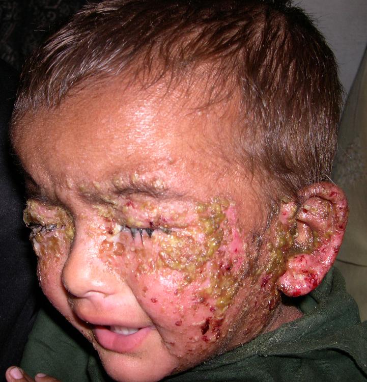 Impetigo: Causes, Symptoms, Diagnosis & Pictures