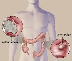 Cara Mengobati Kanker Usus
