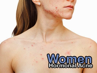 hormonal acne women