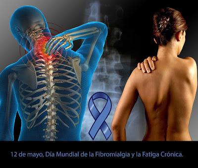 El 12 de mayo es el día mundial de la fibromialgia y la fatiga cronica