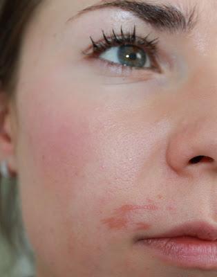 camoufler une cicatrice lesion profonde de peau ou comment j 39 ai massacr mon visage mes. Black Bedroom Furniture Sets. Home Design Ideas