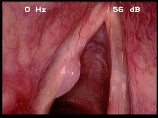 throat img