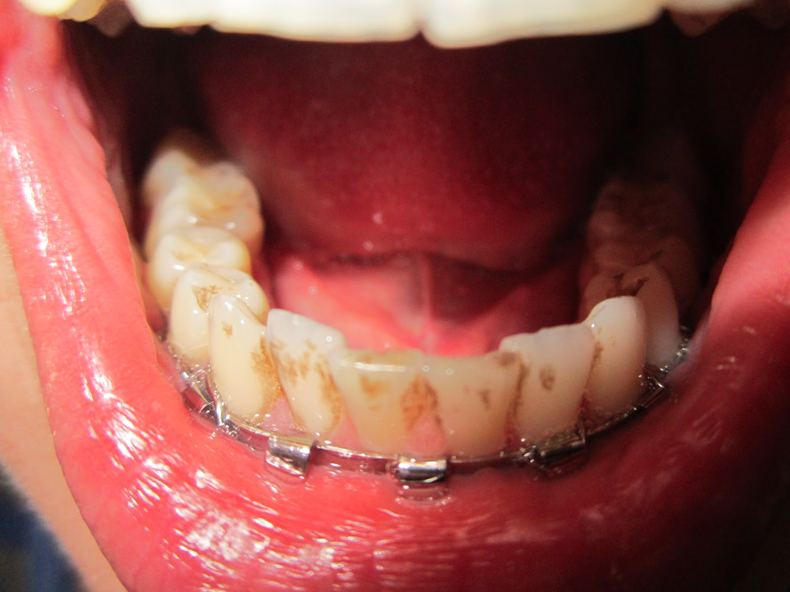 Kid on the Run: Through the Wire: Reflections on my Broken Jaw