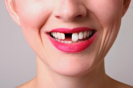 http://dentalimplantsindia.org/treatments-offered/dental-implants/