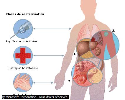 Modes de contamination du virus Ebola