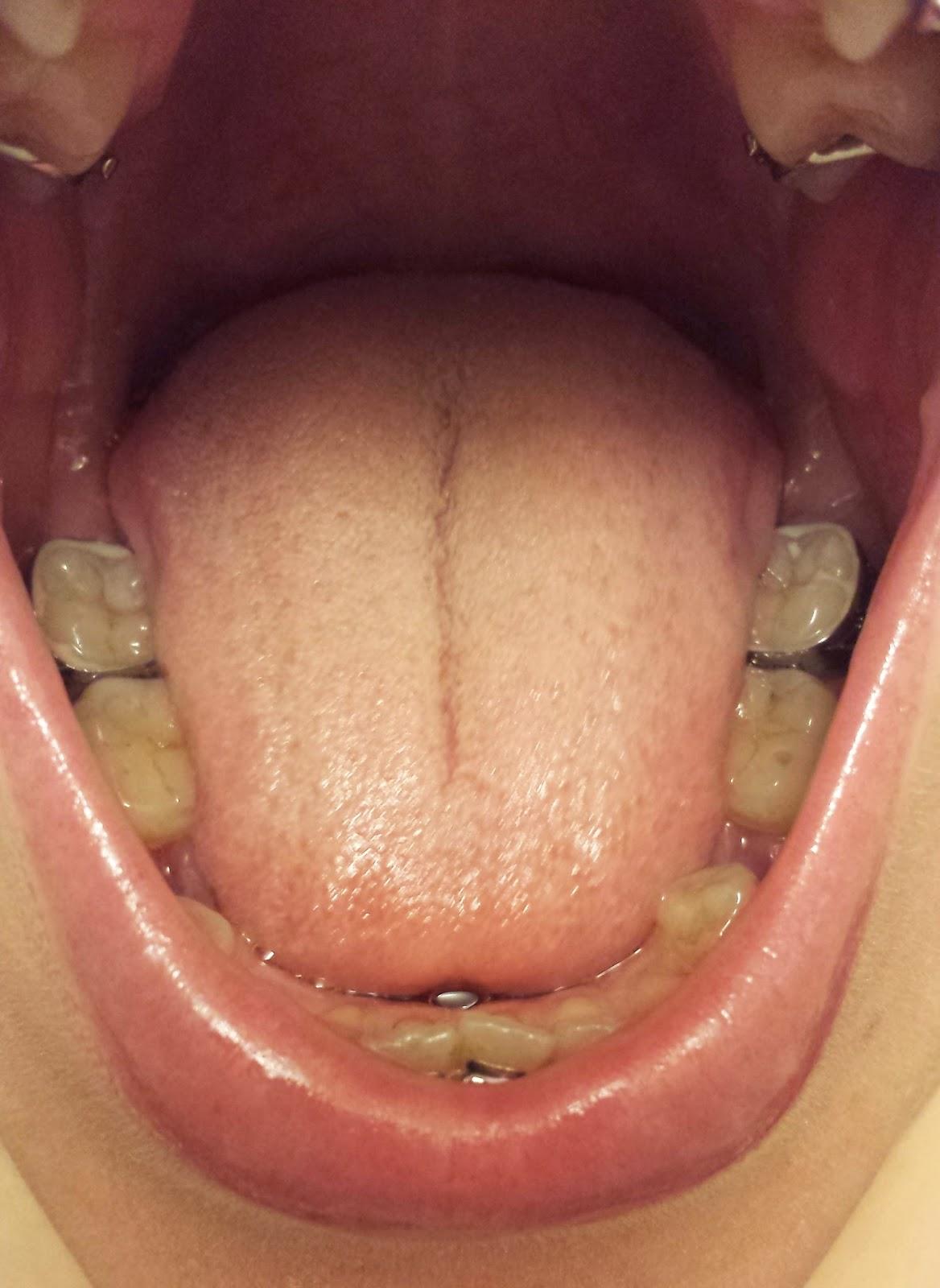 blåsor bak på tungan