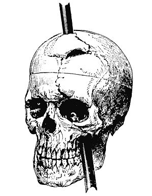 the phineas gage paper The best known case of how a person can survive and have a relatively normal  life after a brain injury was phineas gage his story is an amazing one that is.