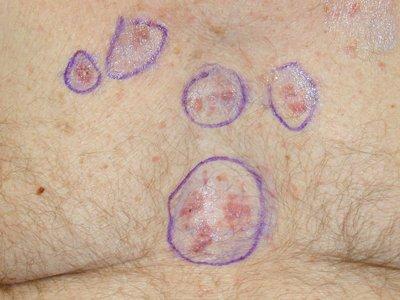 skin cancer symptoms images