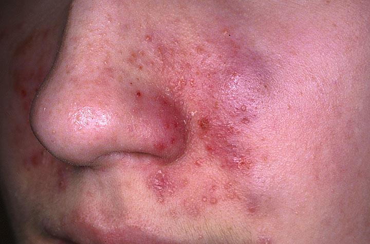 seborrheic dermatitis face treatments
