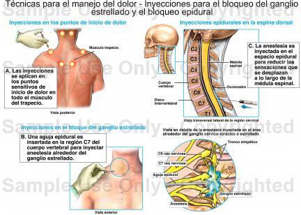 Revista Colombiana de Anestesiología - Bloqueo del ganglio estrellado ...