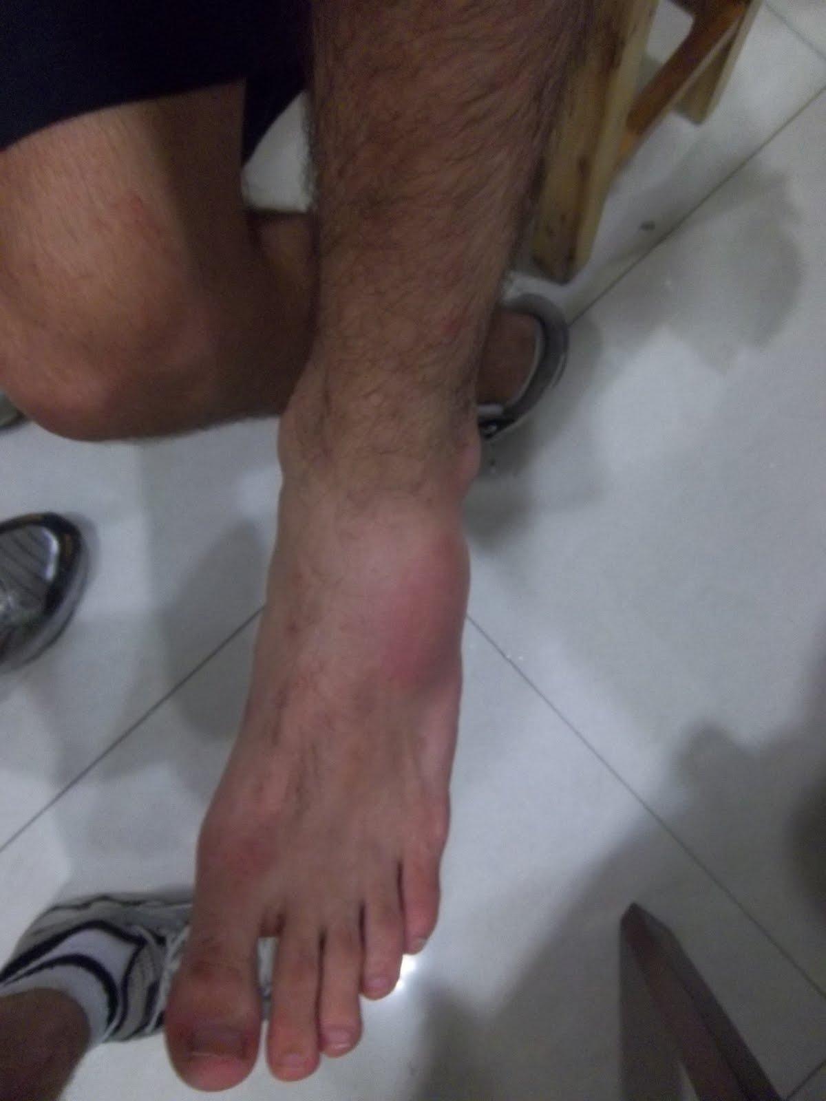 Le médicament contre les veines sur les pieds dans les piqûres