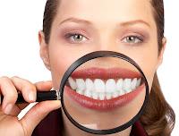mejor blanqueamiento dental