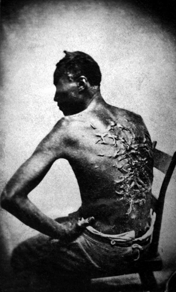 American Civil War Slavery Civil War Was Slavery