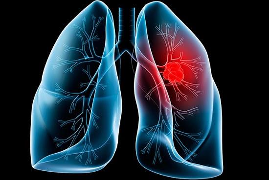 Phát hiện ung thư phổi sớm qua biểu hiện của bệnh