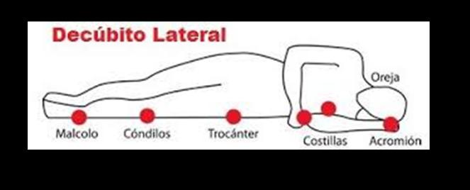 ENFERMERIA ACTUALIZADA: posiciones: decubito lateral,ventral o prona ...