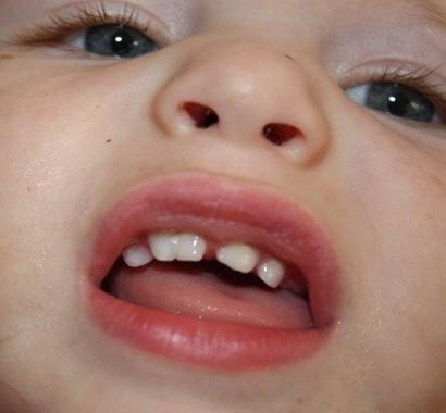 how to fix thin enamel on front teeth