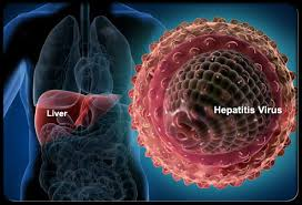 pengobatan alternatif hepatitis b