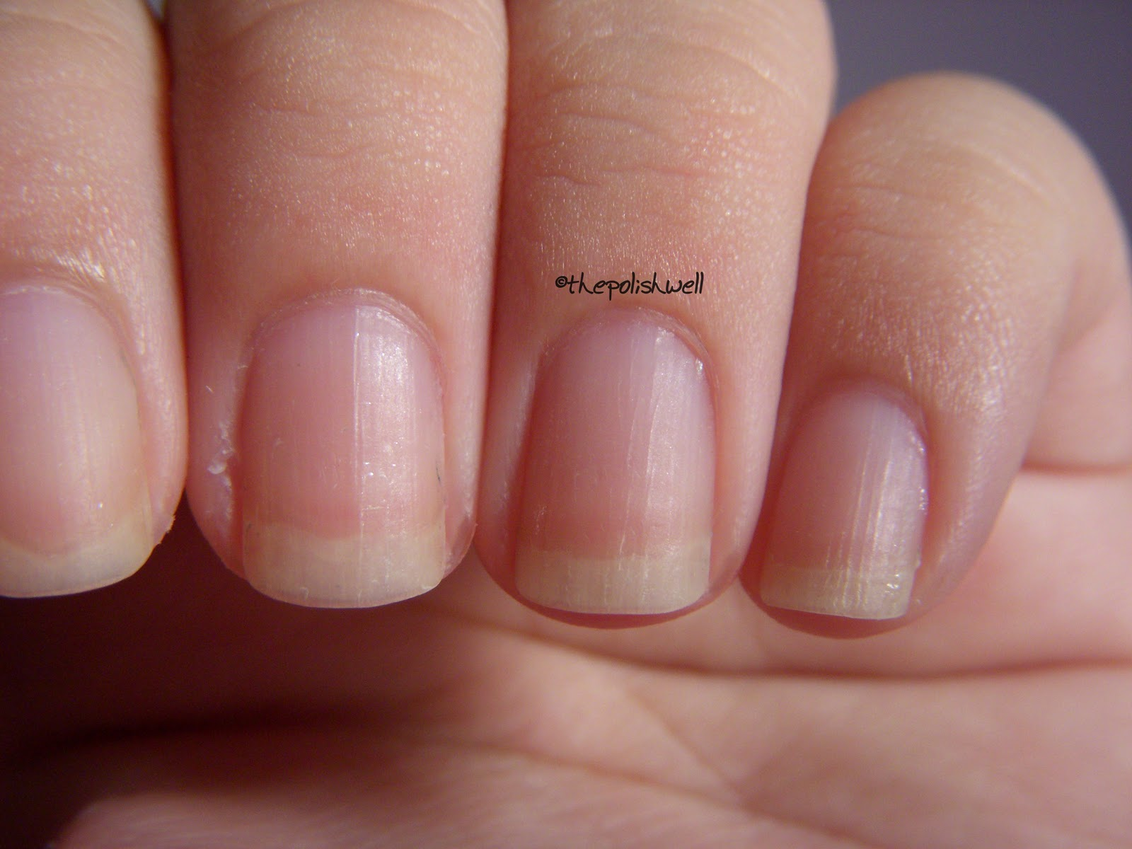 Nails ridges ~ Beautify themselves with sweet nails
