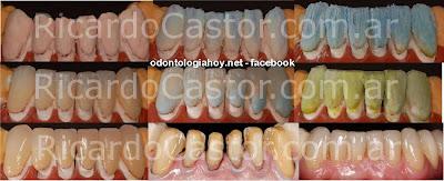 carillas dentales estetica dental