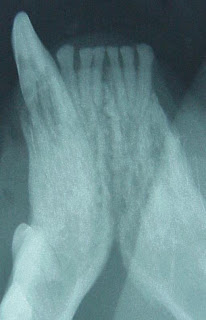 Radiograph of a diseased canine tooth