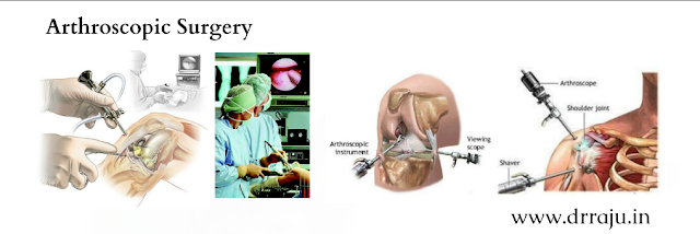 Arthroscopic Surgery in India