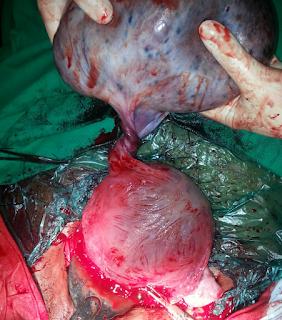 how do ovarian cysts form