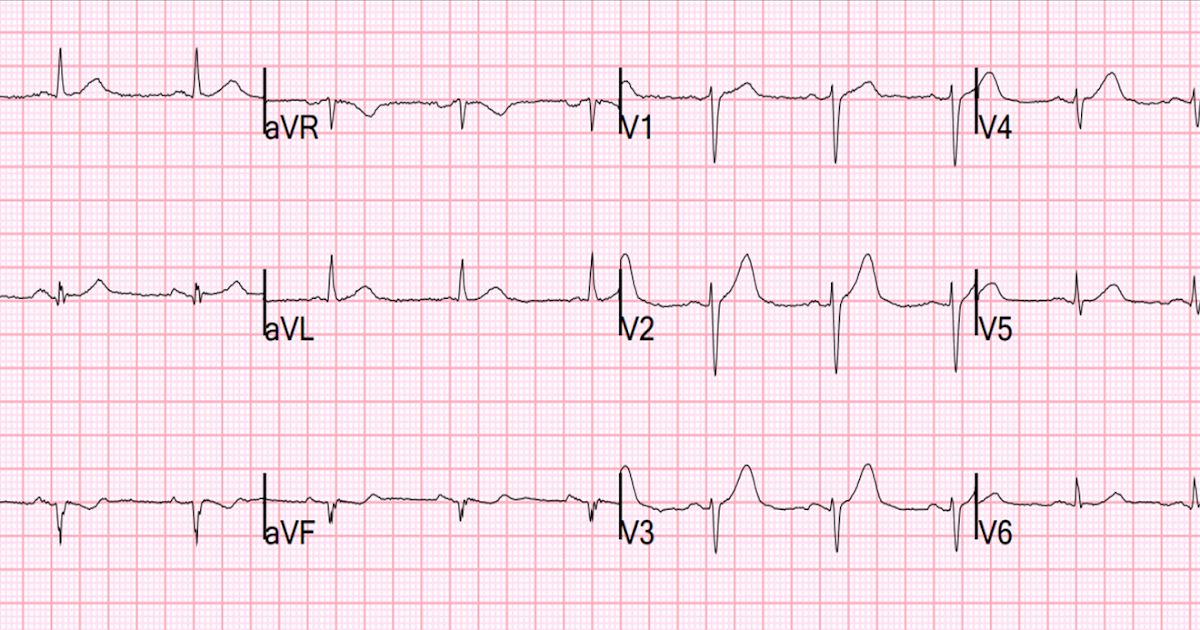 A Tough ECG, But Learn From It!