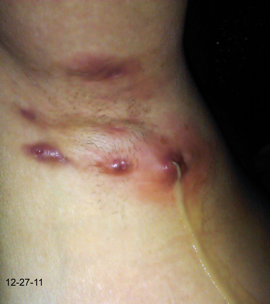 Cellulitis of the axillary area - e-meducation.org