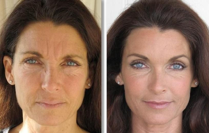 Dealing With Perioral Lines And Mouth Furrows Non Surgical Face Revitalization Exercise Regimens