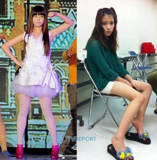 Iu Before And After Plastic Surgery