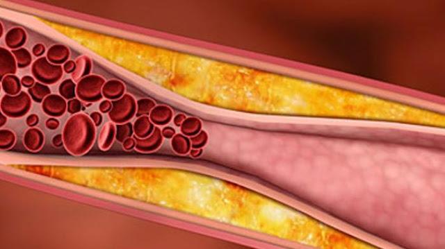 7 Fakta Kolesterol Yang Perlu kamu Ketahui!