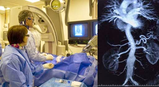 Interventtional Radiology