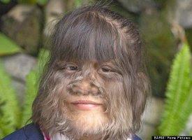 Supatra Sasuphan, Hairiest Girl in the World