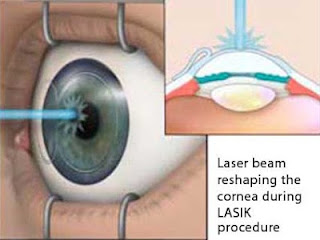 Factors on Which Laser Eye Cost Depends