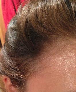 antes y despues clareos entradas caida de pelo