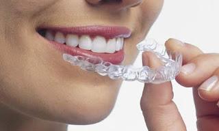 Thais Da Silveira Martins Clareamento Dental