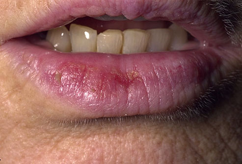 Skin Cancer On Your Lip
