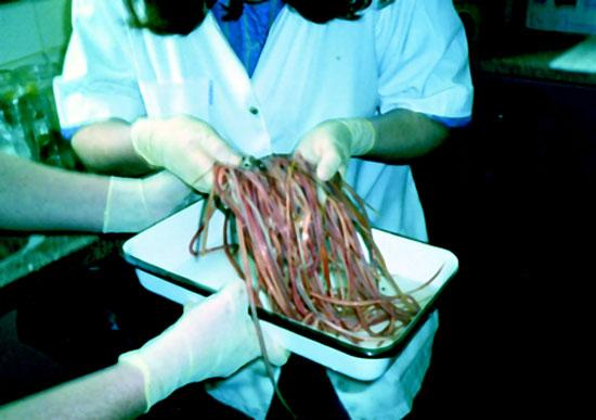 Parasitas hipodérmicos nos vermes de pessoa