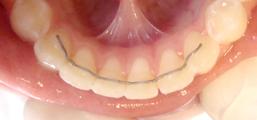 contencion ortodoncia