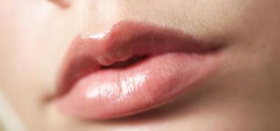 Penyebab dan Cara Mengatasi Bibir Kering