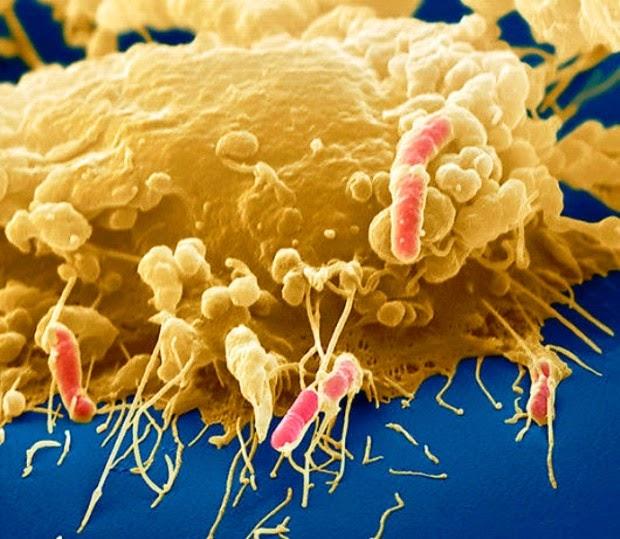 Científicos descubren bacteria que puede absorber contaminación y gases invernadero