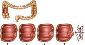 Los-signos-de-alerta-temprana-de-cáncer-de-colon-que-usted-debe-Nunca-haga-caso-y-cómo-prevenirla.