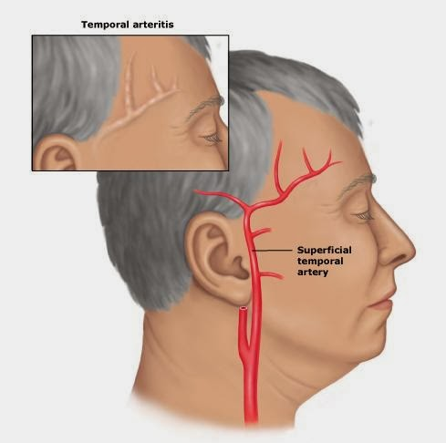 pengobatan herbal arteritis temporalis