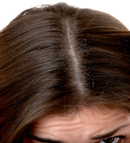 The gallery for --> Dandruff Flakes Solution