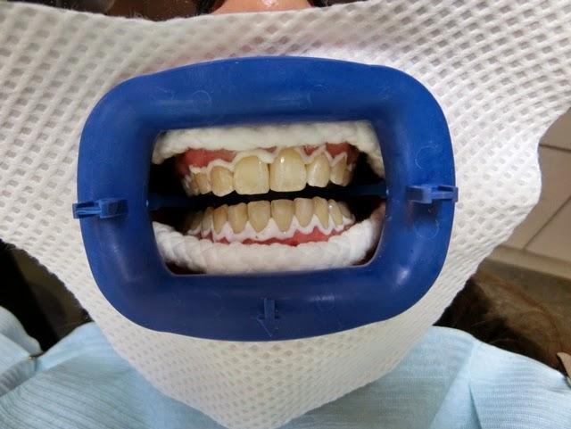 Teeth Whitening With Tanglin Dental Katty Tan